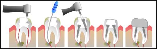 fracture dentaire clinique dentaire et d 39 implantologie de magog inc. Black Bedroom Furniture Sets. Home Design Ideas